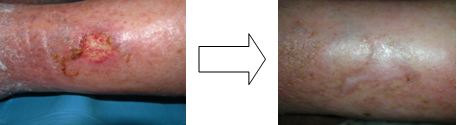 SKIN ULCERS OF THE LOWER LIMBS OF SUSPICIOUS ORIGIN arteriovenous