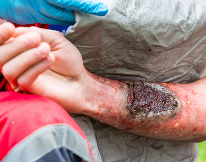 Treatment of thermal burns in a hospital setting